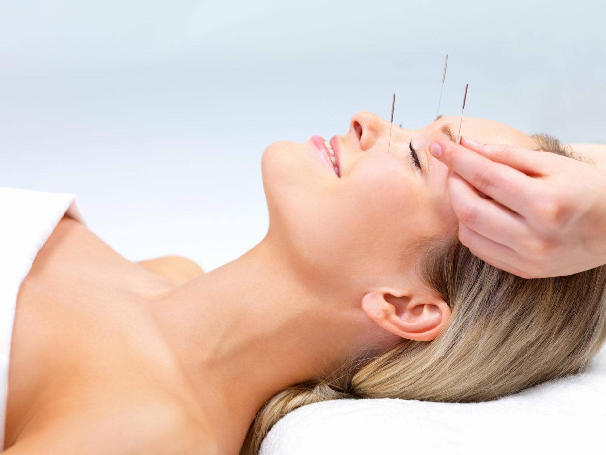 Déroulement d'une séance d'acupuncture
